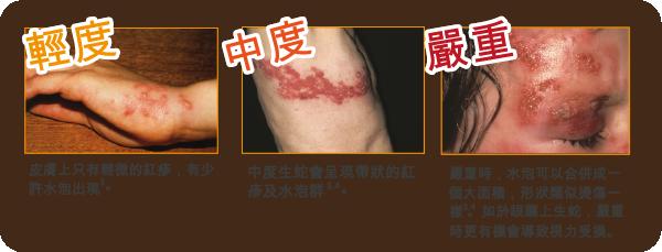 香港hpv疫苗